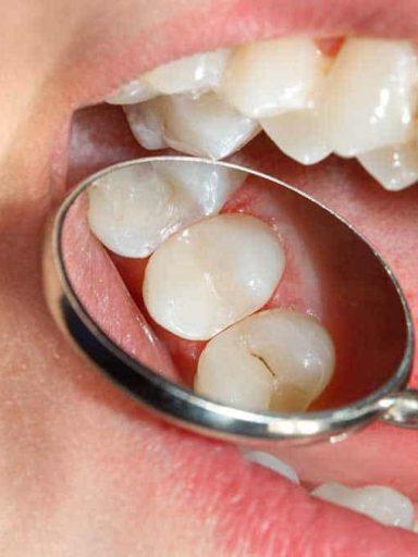 problemas con las caries dental