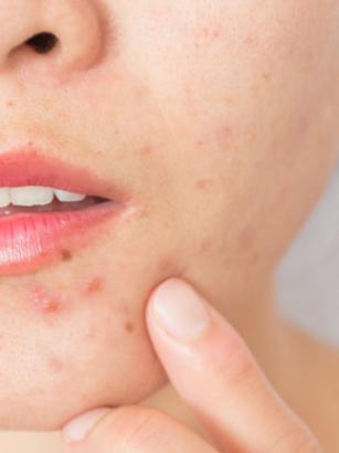 tipo de acné hormonal